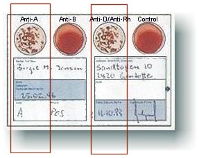 blood type test results card